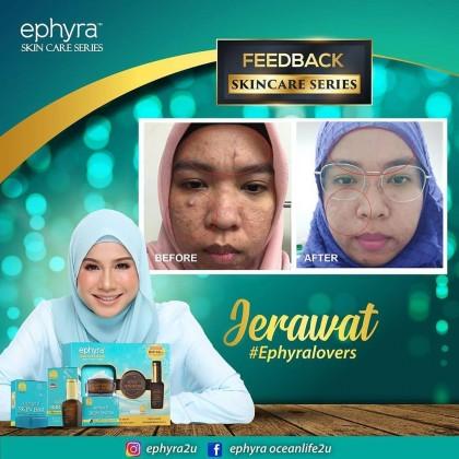 Ephyra Skin Snow