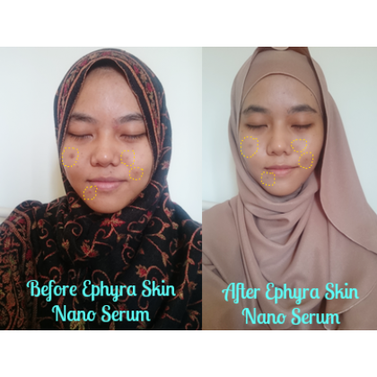 Ephyra Skincare Value Set